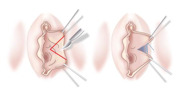 wichs technik sperma in den mund spritzen